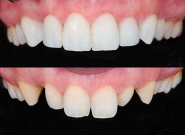 Fundas o coronas dentales, ¿Qué son?